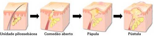 oleosidade-causada-por-cremes-capilares